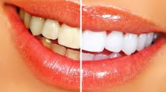Before and after image of professional teeth whitening.
