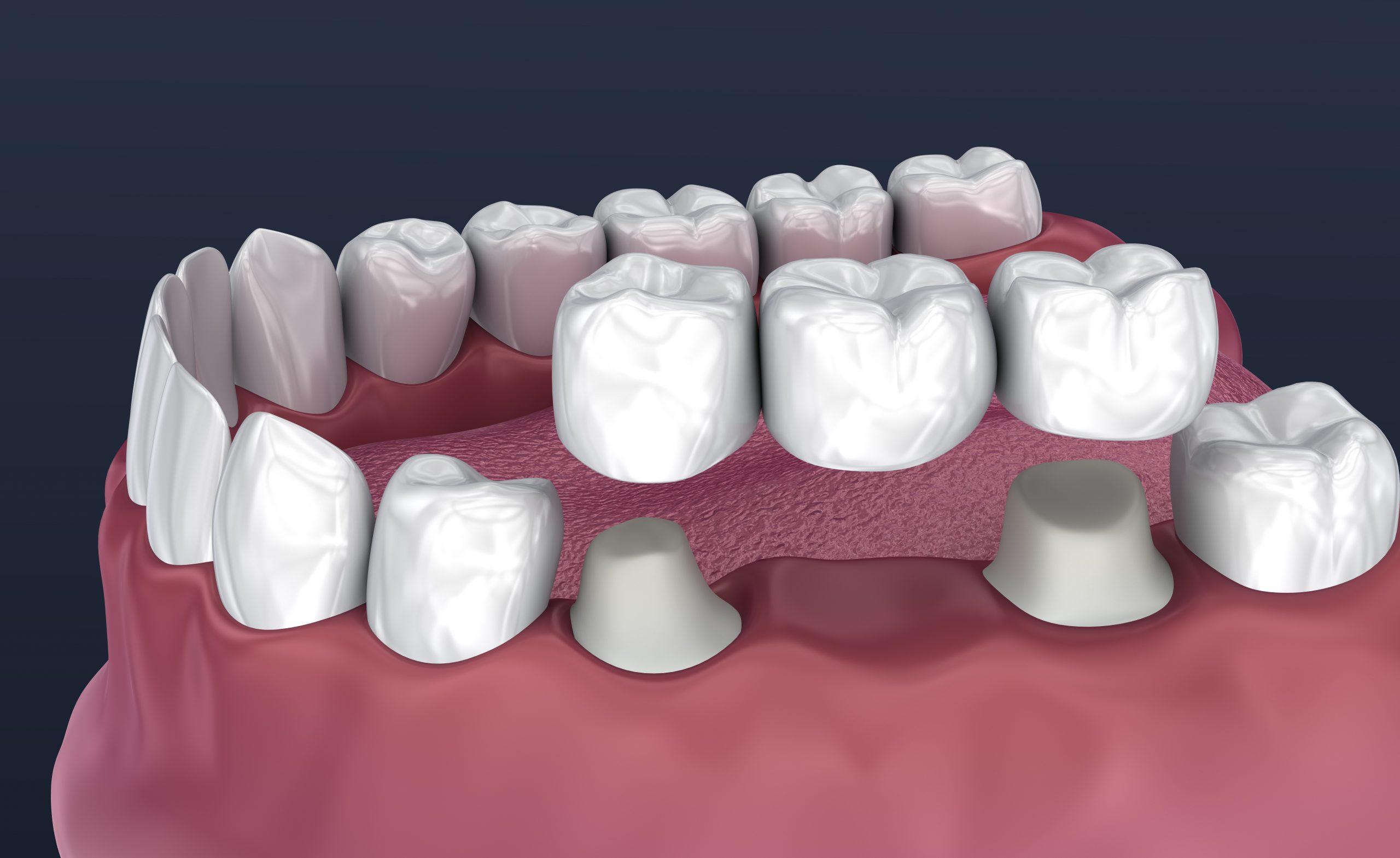 Dental Bridge 3D diagram